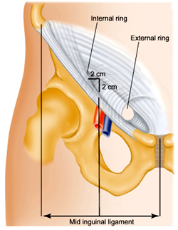 The inguinal canal.