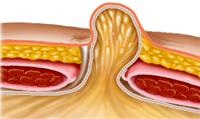Para-umbilical hernia.