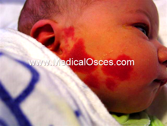 What is your Spot Diagnosis ?