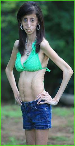 Lizzie precisa de 60 refeições por dia para se manter saudável