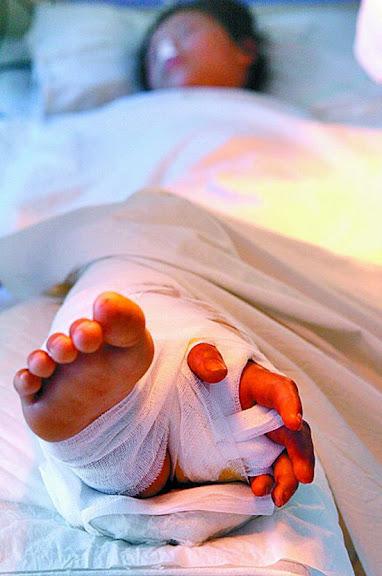Ming Li - teve a mao enxertada na perna