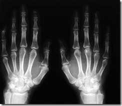 radiografia6105x
