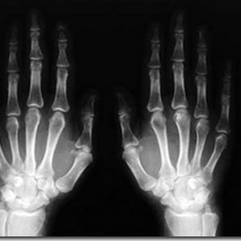 Immagini radiologiche e presentazioni