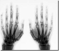 radiografia6105xb