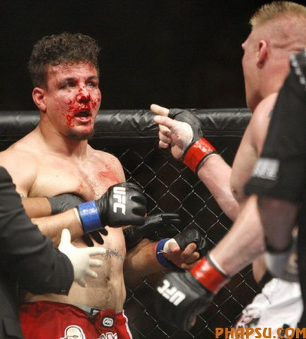 Brock Lesnar, right, gets in Frank Mir's face after their heavyweight title bout at UFC 100 at Mandalay Bay in Las Vegas Saturday, July 11, 2009. (AP Photo/Las Vegas Review-Journal, John Locher) ** LAS VEGAS SUN OUT  MAGS OUT  NO SALES ONLINE OK **