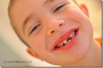 lost teeth 001
