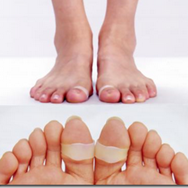 Toe Rings Improve Posture, Burn Fat Faster