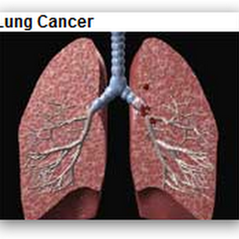 FDA Approves Lung Cancer Drug – Alimta from Lilly