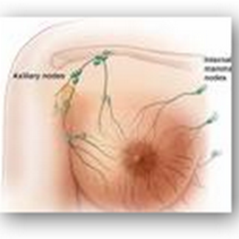 Study indicated 1 out of 3 Cases of Breast Cancer are Over Treated