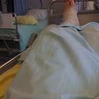 Ortonissa ACL-leikkauksen jälkeen