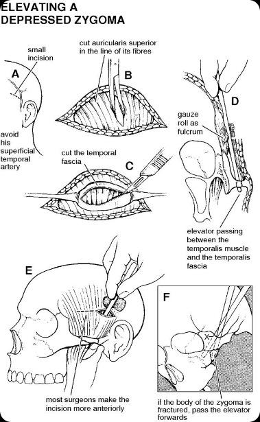 zygoma fracture