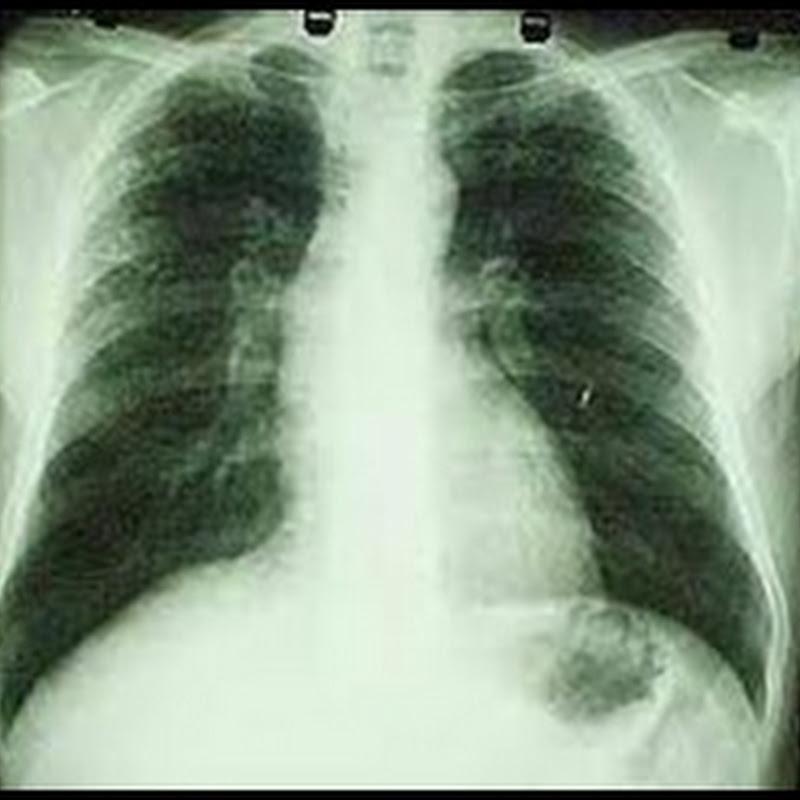 Os cuidados com exames de raio-x