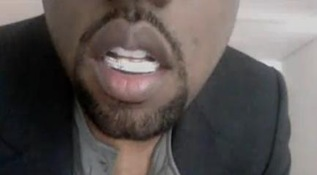 kanye West Diamond Teeth picture