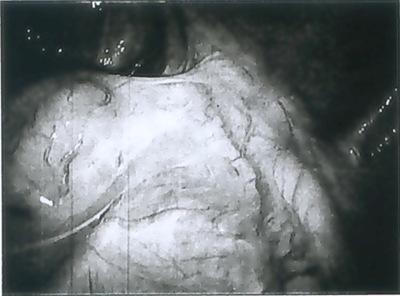 laparoscopy 01B