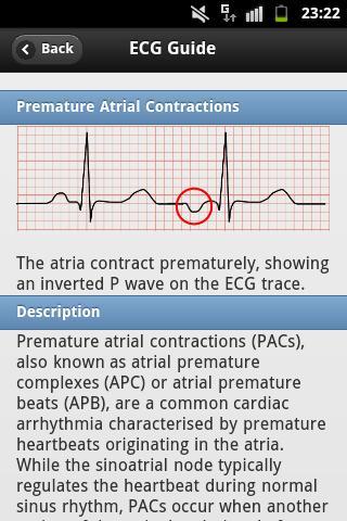 【免費醫療App】ECG Arrhythmias Pro-APP點子