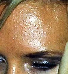 http://lh4.ggpht.com/fisherwy/Rw83w1KtdsI/AAAAAAAAJ60/DVFGk1_yN6s/Victoria+Beckham+Shows+Her+Pimply+Skin2%5B5%5D.jpg