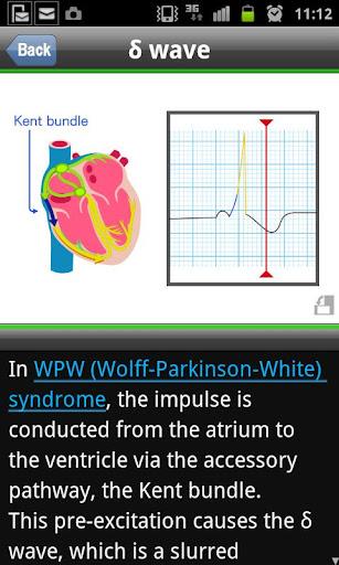 【免費醫療App】easy ECG training-APP點子