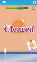 Screenshot of Hair Removal - Free games