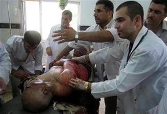 Kirkuk-Kurdistan Suicide Explosion kerkuk itc turkey iraq (4)