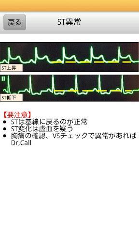 【免費醫療App】iNurse Tools 異常心電図-APP點子