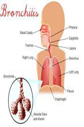 Bronchitis Guide
