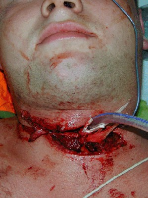 Tracheal_laceration.jpg