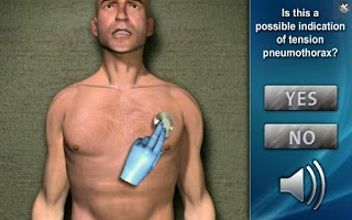 Screenshot of Medrills: NCD for Pneumothorax