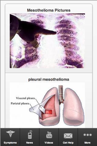 Mesothelioma and Asbestos Help