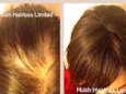 Hair loss help for women with Real Hair Wigs