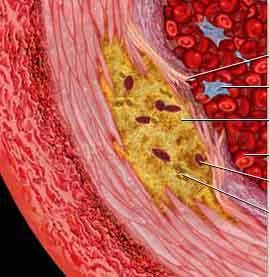 atherosclerosis-6782320.jpg