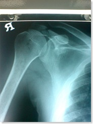 fracture on the acromion of the scapula