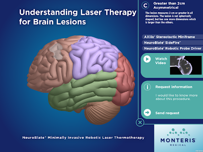 Laser Therapy - Tablet Version - screenshot