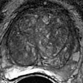 PI-RADS IRM Prostate fr