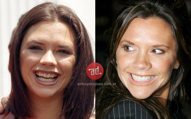 New teeth of Victoria Beckham