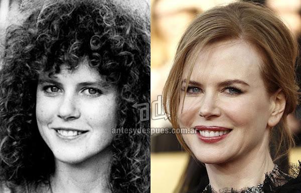 Nose Job, Rhinoplasty, Nicole Kidman