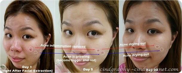 Cellnique Skin Action Sebum Gel review