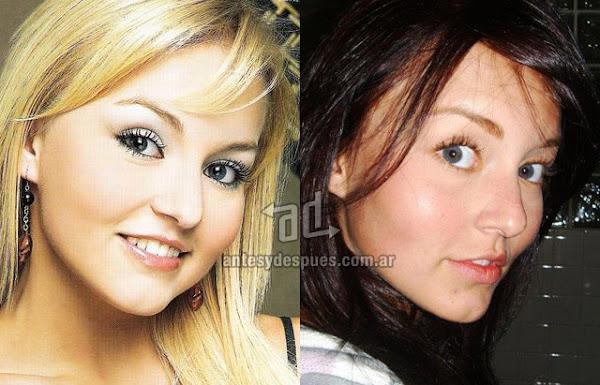 La nueva nariz operada de Angelique Boyer