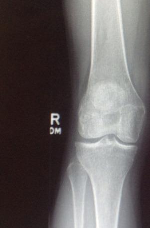 Knee MRI