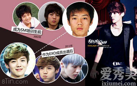 #Tin_tức_thẩm_mỹ: Luhan (cựu thành viên EXO) lộ ảnh trước phẫu thuật thẩm