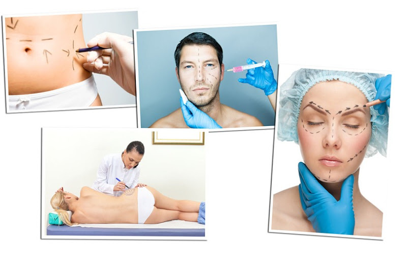 cirurgia-plc3a1stica-1