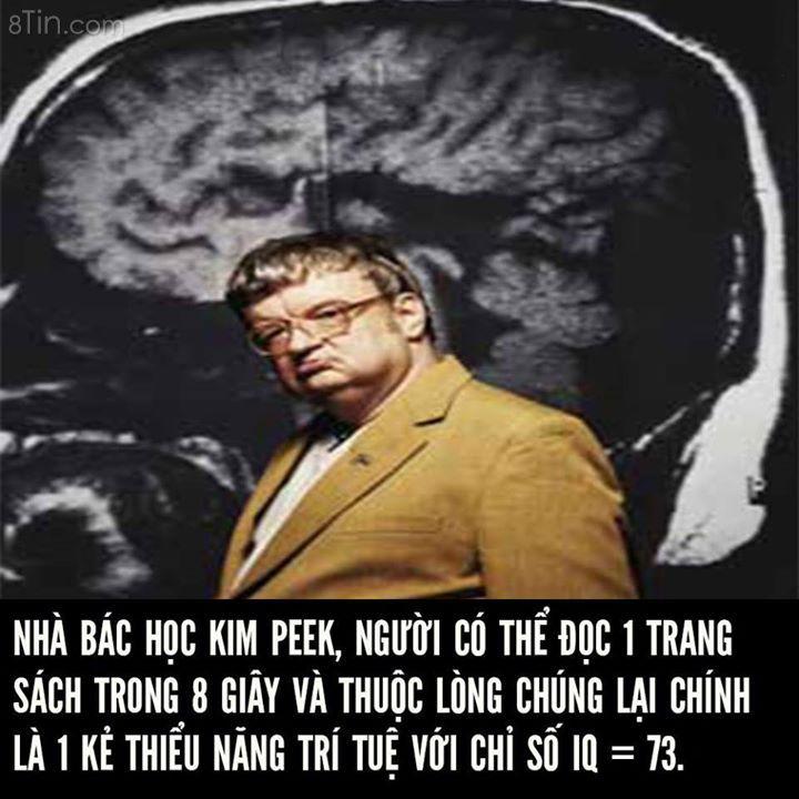 Vì sao thiểu năng trí tuệ có thể đột ngột trở thành thiên tài?