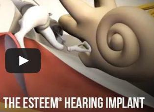 Teknik implantasi telinga membuat wanita tuli ini mampu mendengar