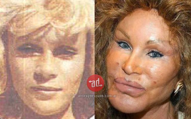 Foto del aumento de labios de Jocelyn Wildeinstein