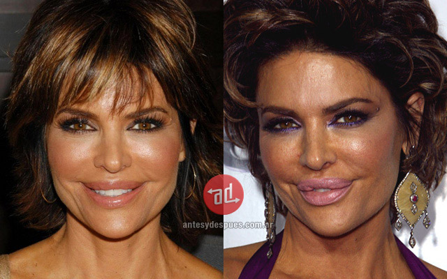 Lip augmentation of Lisa Rinna