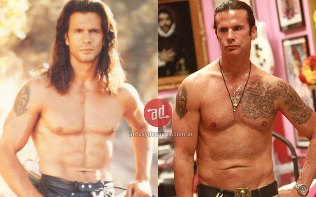 Lorenzo Lamas before and after
