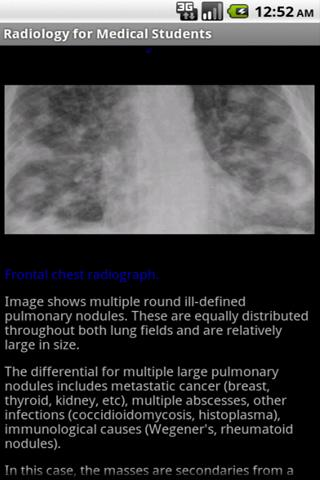 Radiology for Medical Students - screenshot