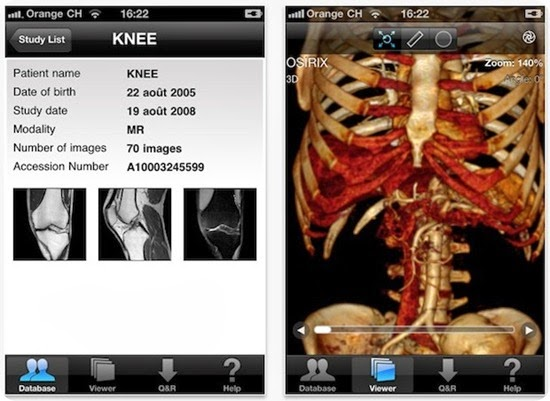 osirix-for-iphone