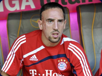 Franck-Ribery-Hairstyles-Picture1