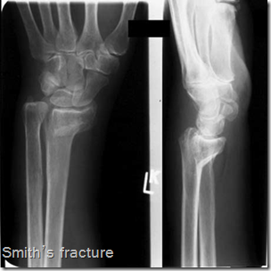 Abc Radiology Blog Smith S Fracture