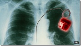 _64764425_m5000041-heart_pacemaker_x-ray-spl